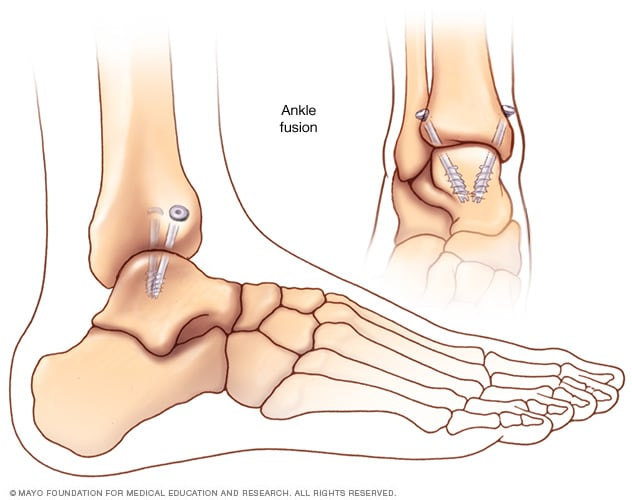 Illustration of an ankle fusion