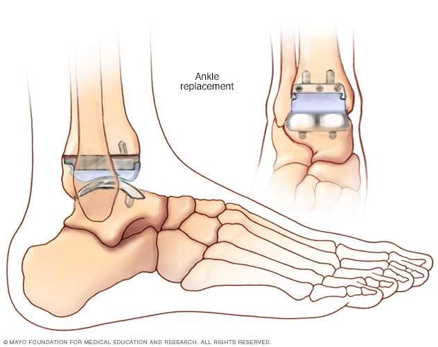 Illustration of an ankle replacement