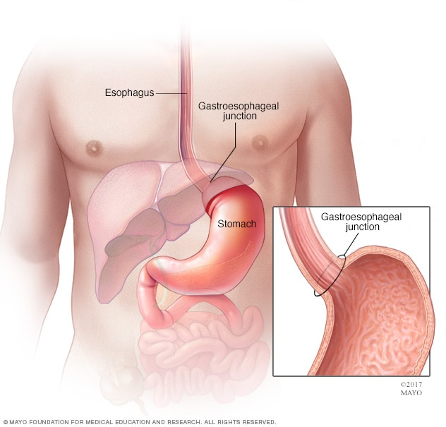 Illustration of esophagus, gastroesophageal junction and stomach