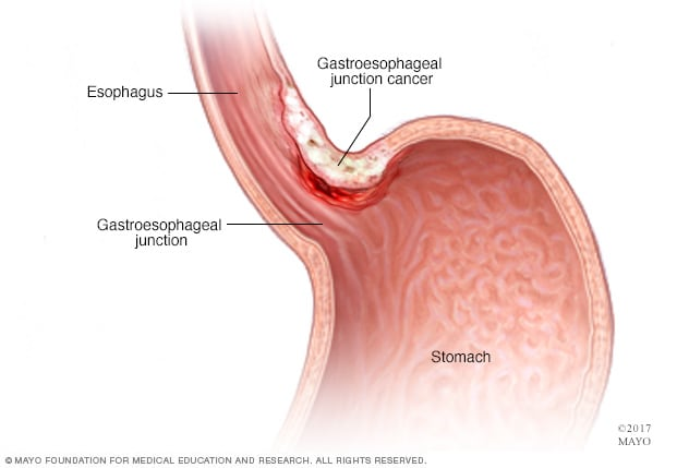 Illustration of gastroesophageal junction cancer