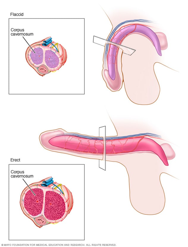 Illustration showing flaccid and erect penis