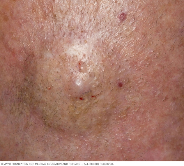 Cutaneous B-cell lymphoma