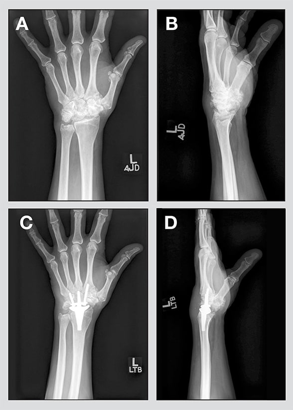 Wrist Replacement An Option For Advanced Arthritis For Medical