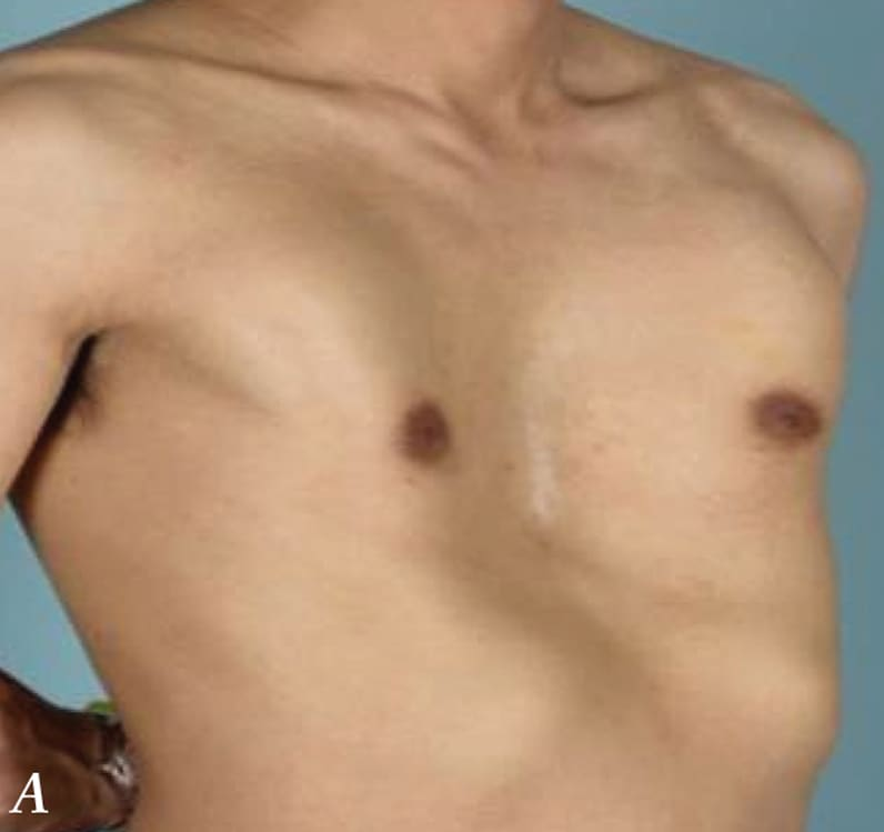 Chest wall before minimally invasive repair of pectus excavatum