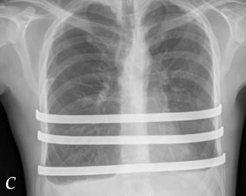 X-ray of chest after placement of three support bars
