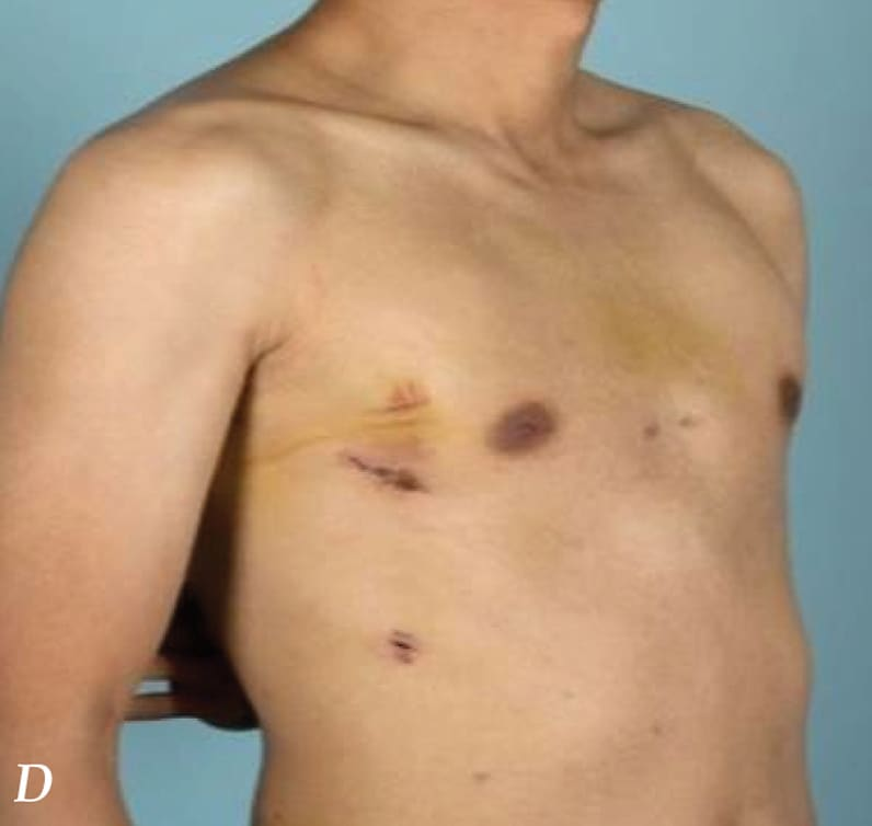 Chest wall after repair of pectus excavatum
