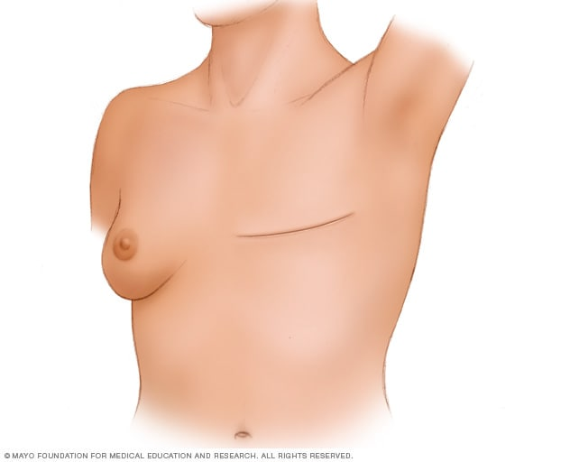 A person who has undergone a total (simple) mastectomy without breast reconstruction