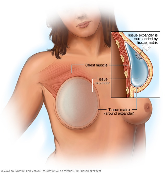 Breast reconstruction with a breast implant placed above the chest muscle