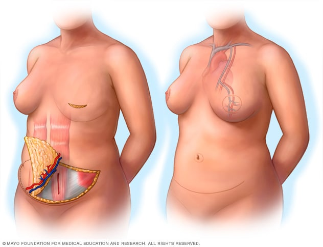 During and after images of breast reconstruction using the DIEP flap procedure