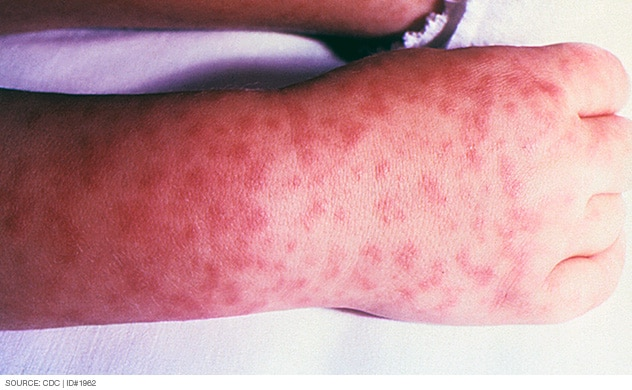 Photograph of rash caused by Rocky Mountain spotted fever