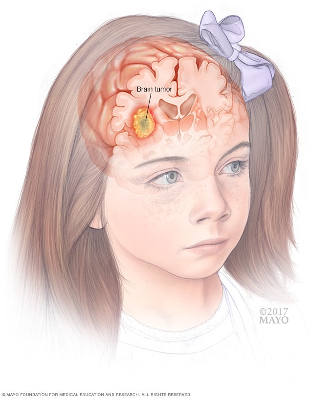 Brain tumor in child
