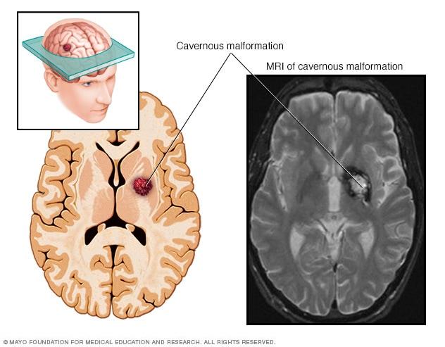 cavernous angioma vs hemangioma