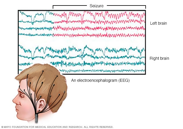 EEG brain activity