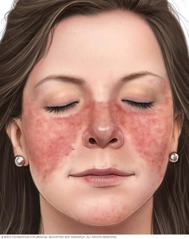 Rash cause facial