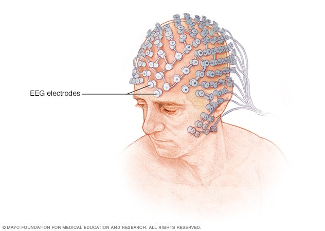 Illustration showing electrode placement in high-density EEG testing