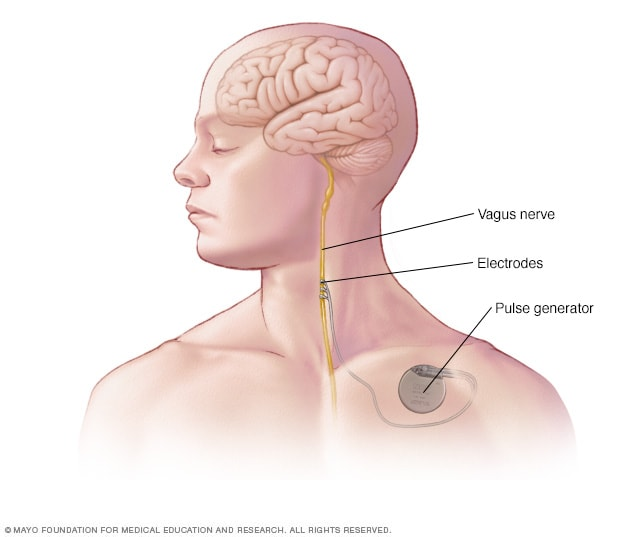 Illustration showing device placement in vagus nerve stimulation