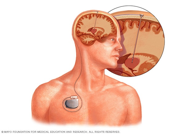 Illustration showing electrode placement and device location in deep brain stimulation