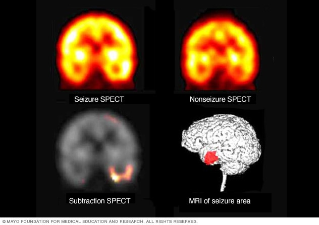 Example images of brain scans to pinpoint seizure location