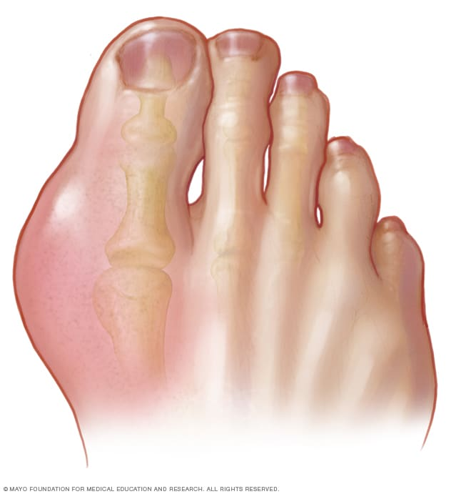 Gout Symptoms And Causes Mayo Clinic
