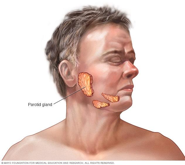 التهاب الغدة النكافية والغدد اللعابية، أسباب وأعراض وطرق علاج