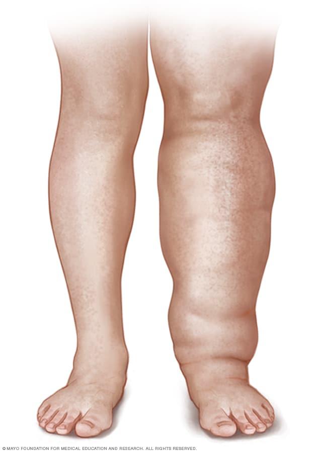 Lymfaödeema