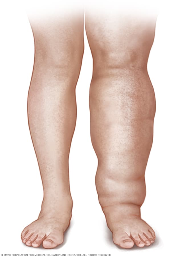 Lymphedema Symptoms And Causes Mayo Clinic