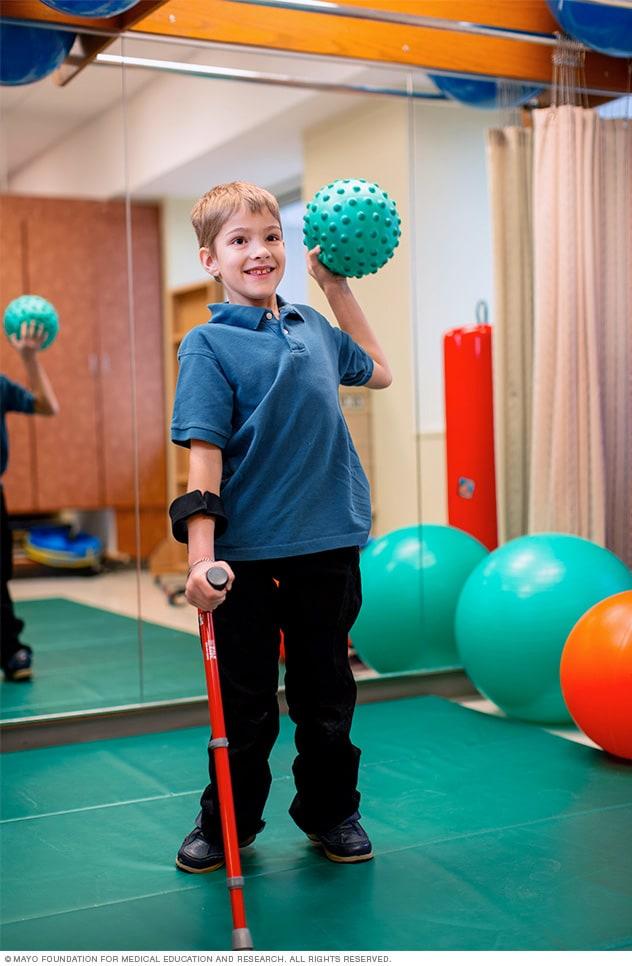 Spina Bifida Diagnosis And Treatment Mayo Clinic
