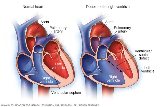 Double Outlet Right Ventricle Overview Mayo Clinic