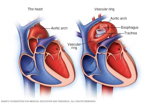 Anillos vasculares - Descripción general - Mayo Clinic