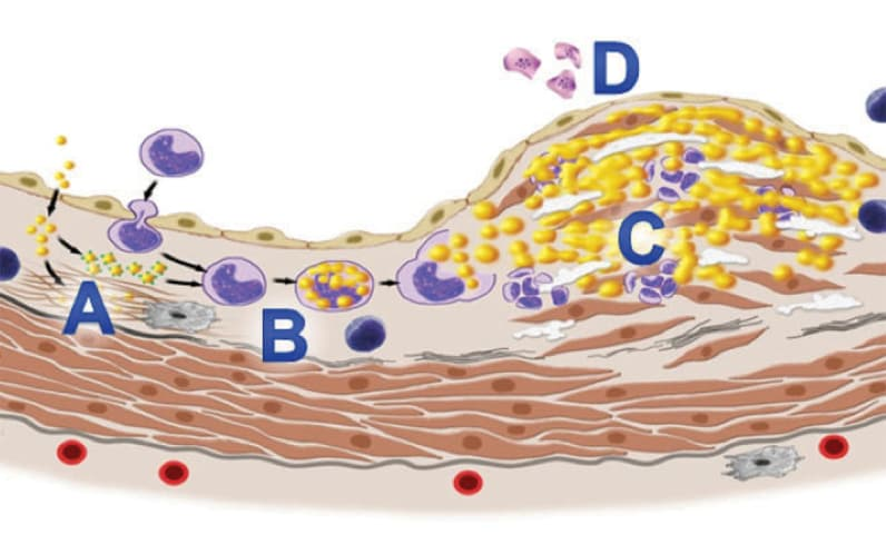 Ceramides and atherosclerosis