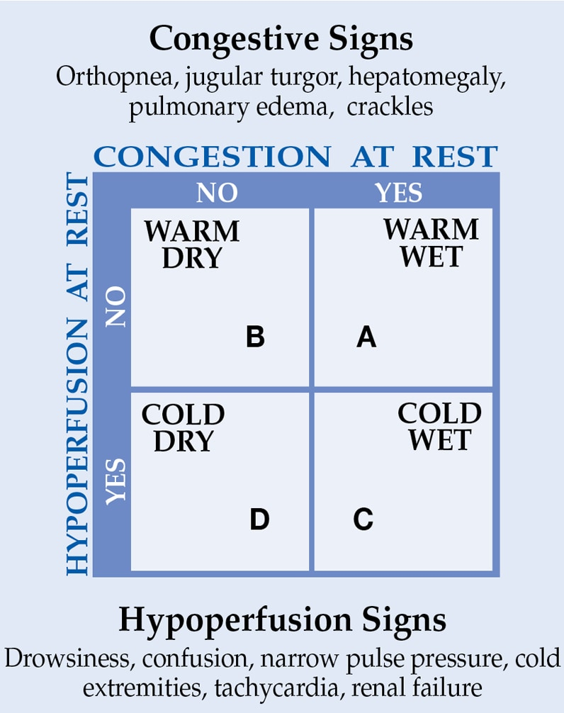 Hypoperfusion signs