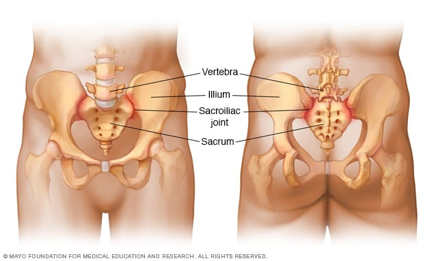 Sacroiliac joints shown