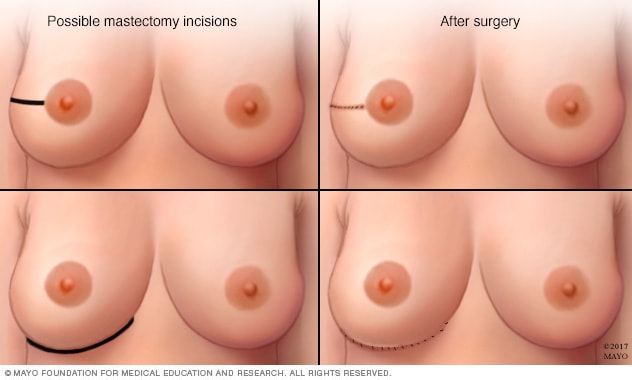 Common incisions used during nipple-sparing mastectomy