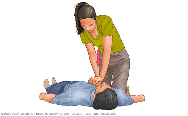 cardiopulmonary resuscitation cpr first aid mayo clinic