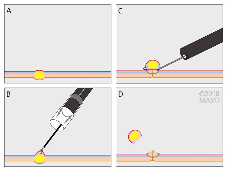 Clip-assisted endoscopic full-thickness resection of a subepithelial lesion