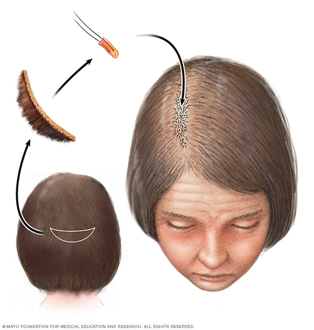 Hair transplant for hereditary hair loss