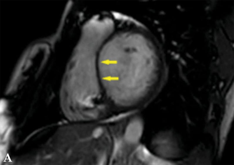 Noncontrast cardiac magnetic resonance imaging of patient with cardiac sarcoidosis