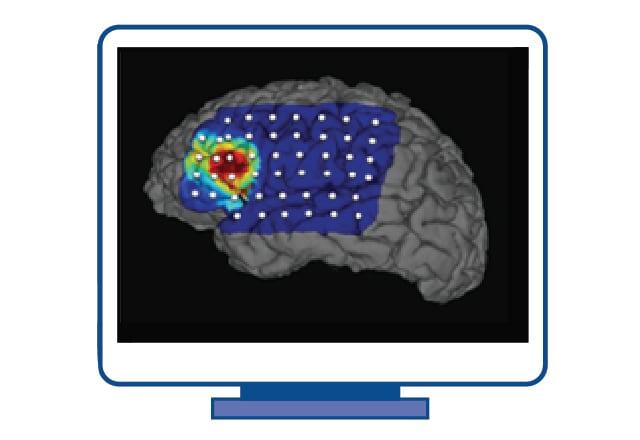 Epilepsy - Care at Mayo Clinic - Mayo Clinic