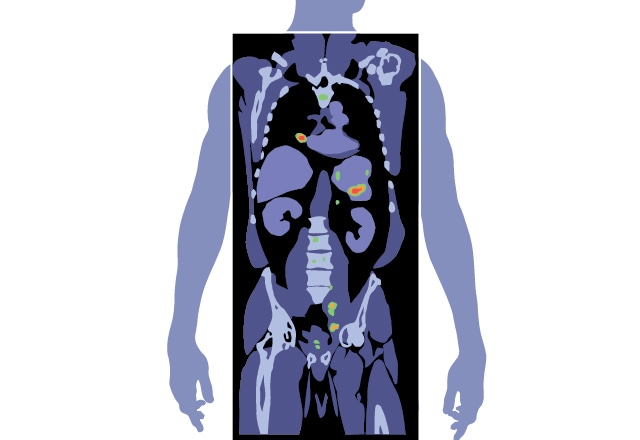 inmunoterapia para el cáncer de próstata en Minnesota