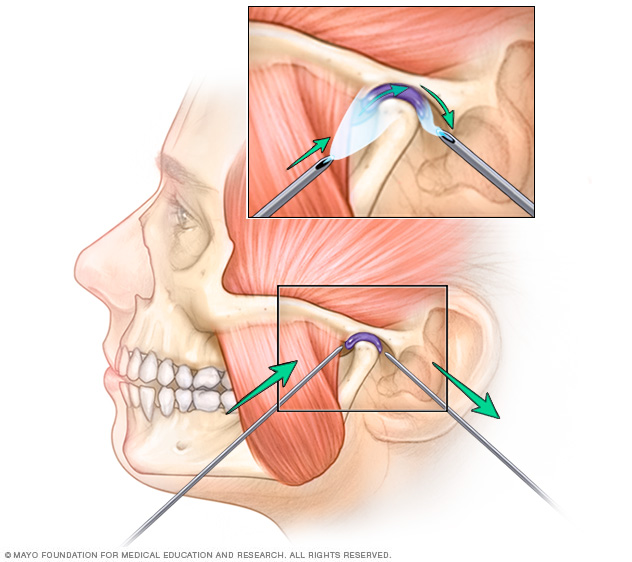 Arthrocentesis for TMJ