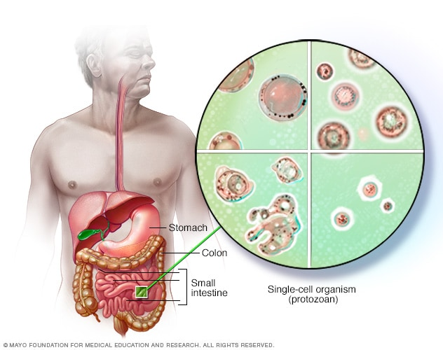Blastocystis hominis - Symptoms and causes - Mayo Clinic