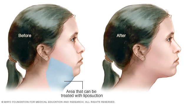 Area under chin that can be treated with liposuction