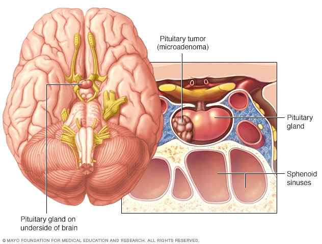 Pituitary tumors - Symptoms and causes - Mayo Clinic