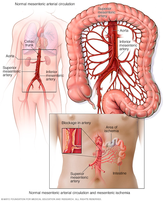 Normal mesenteric arterial circulation and mesenteric ischemia