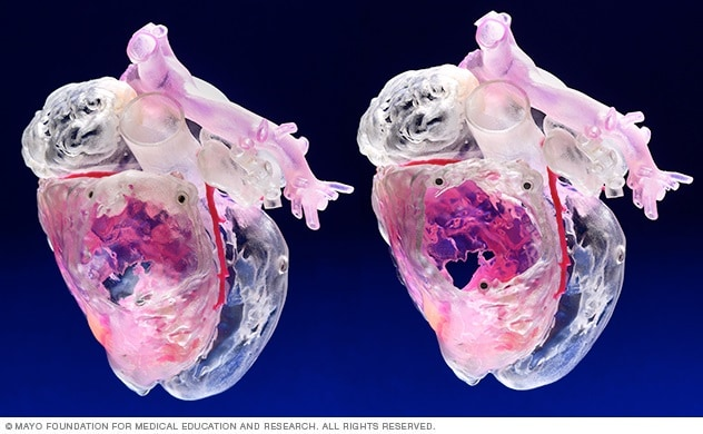 3D-printed models of the heart and related parts of the vascular system are used in medical education