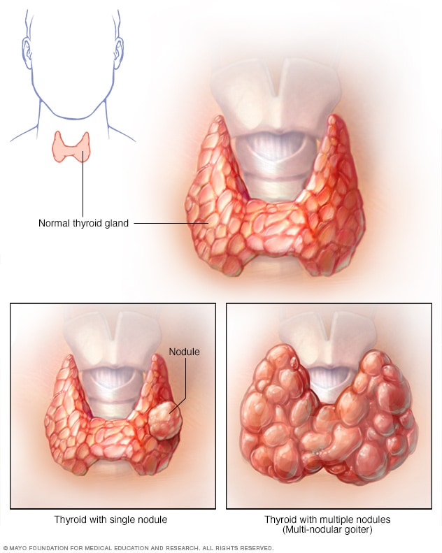 Thyroid Nodules Symptoms And Causes Mayo Clinic
