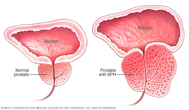Enlarged prostate with benign prostatic hyperplasia compared with normal prostate