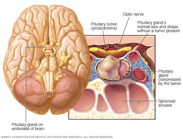 Prolactinoma in the pituitary gland