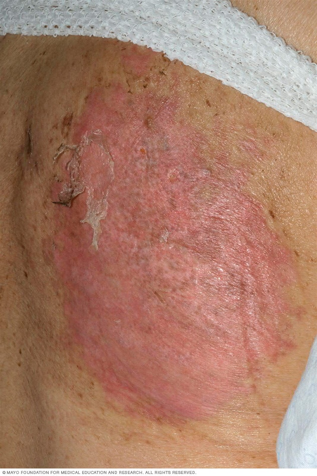 A TEN rash on a woman's back causes loose, peeling skin.