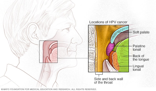 HPV increases the risk of cancer of the throat, soft palate, tonsils and back of the tongue.